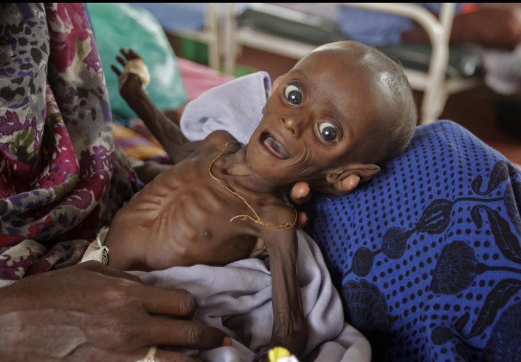 Somalian famine baby